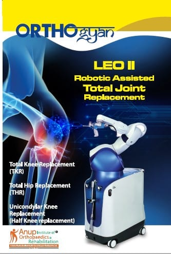 LED II Robotic Assisted Total Joint Replacement
